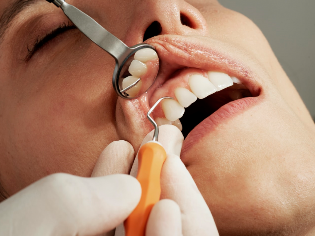 5 reasons to see a dental hygienist