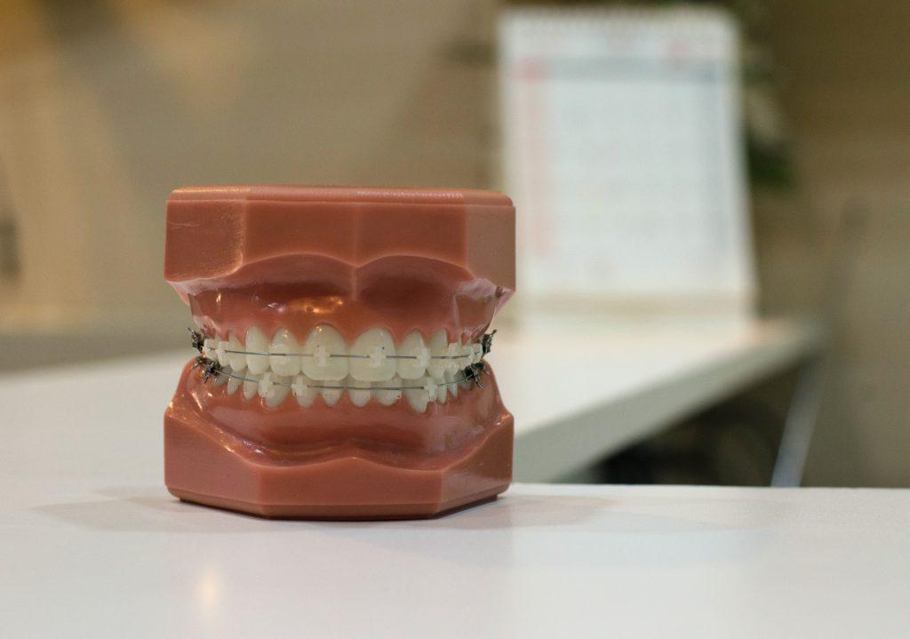 Orthodontic treatment East Kilbride